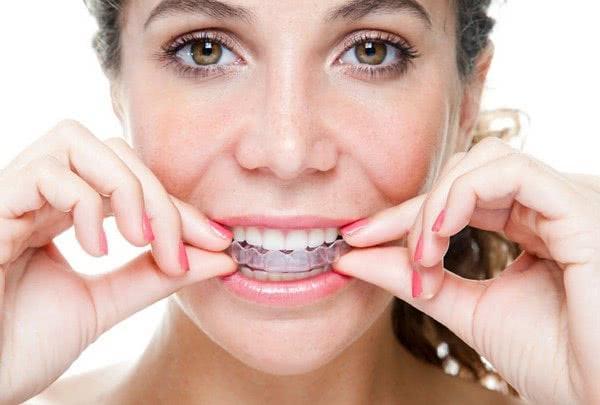 Zahnaufhellung durch den Mund in der Klinikpfeife und Söhne