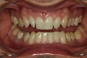 Фото до химического офисного отбеливания зубов