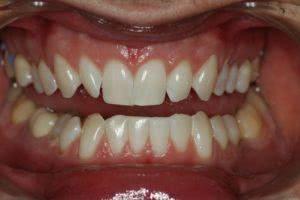 Фото после химического офисного отбеливания зубов