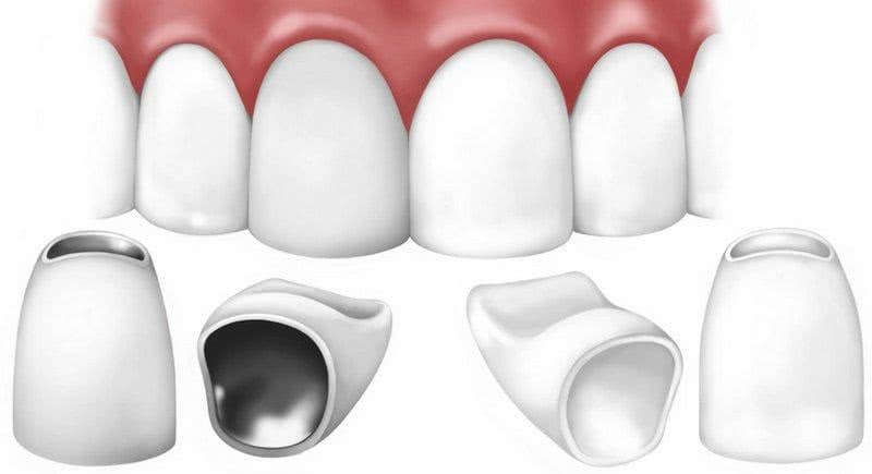 Metal-ceramic crowns