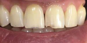 фото до реставрации передних зубов