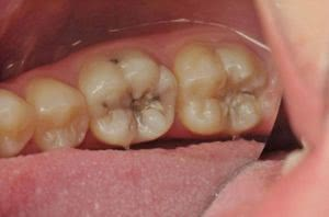 Фото до лечения пульпита в клинике