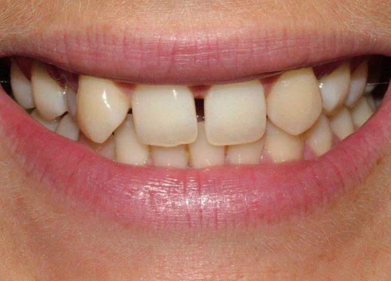 фото до реставрации зубов в минске