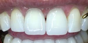 фото после реставрации передних зубов