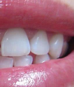 Фото после лазерного отбеливания зубов