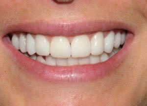 фото после реставрации зубов в минске