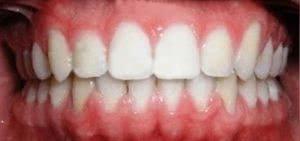 фото после шинирования зубов