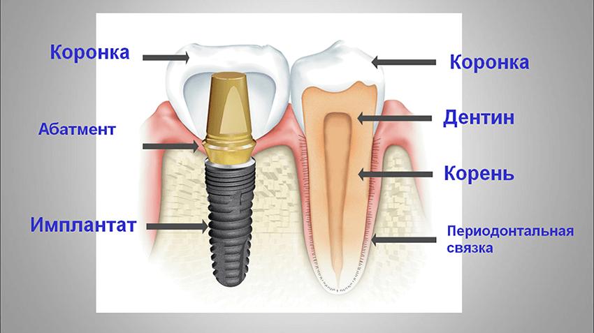 Части настоящего и искусственного зуба