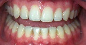 фото до чистки зубов air flow