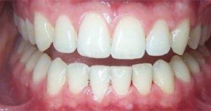 фото после чистки зубов air flow