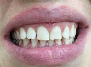 Фторирование - защита зубов от кариеса