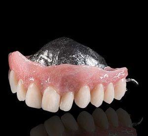 Ремонт зубных протезов в Минске
