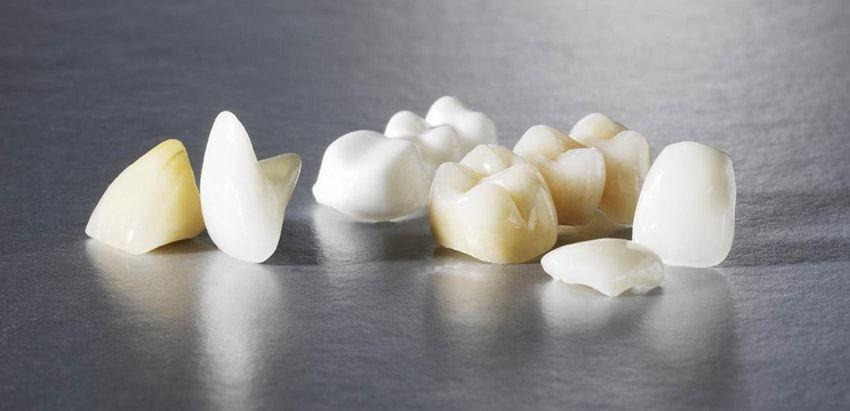 Temporary crowns for teeth