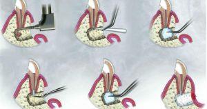 Резекция корней зуба