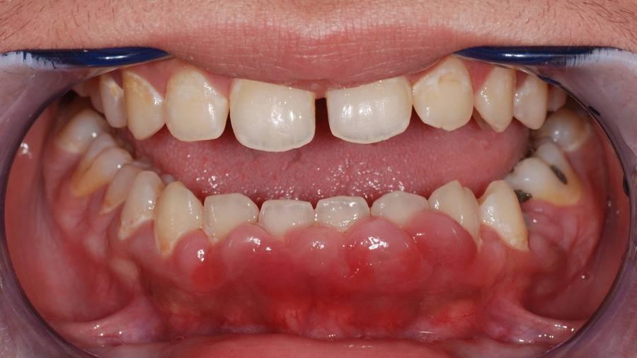 jak wygląda rozległy ropień zęba