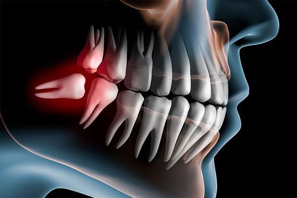 Методики удаления зуба мудрости