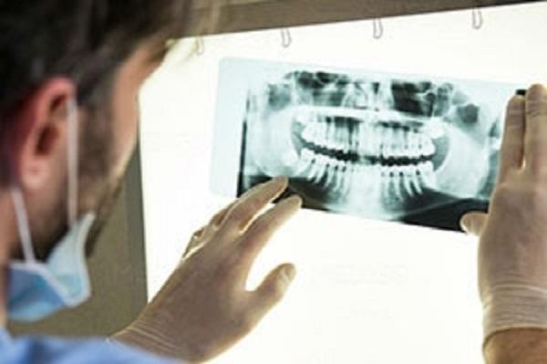 Компьютерная томография зубов в Минске