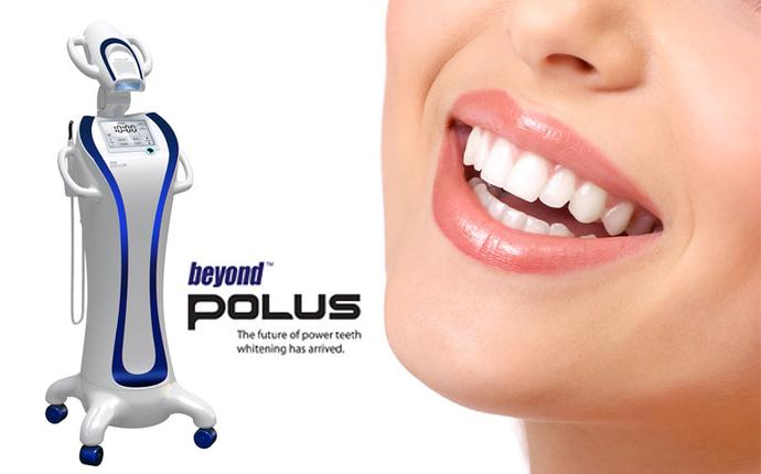 Teeth whitening with Beyond Polus