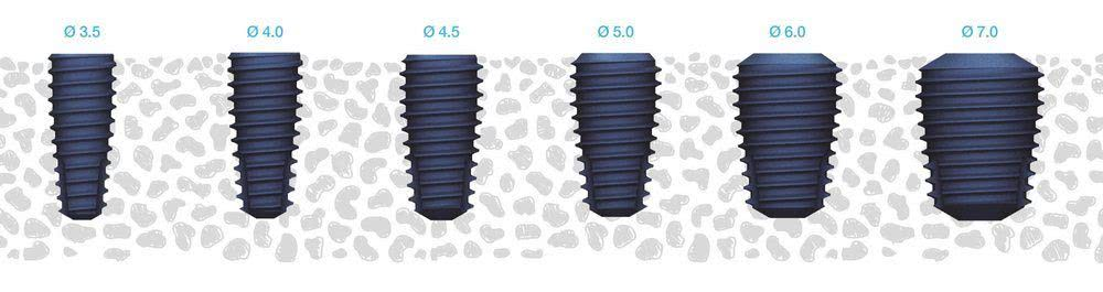 Dental Implants Megagen
