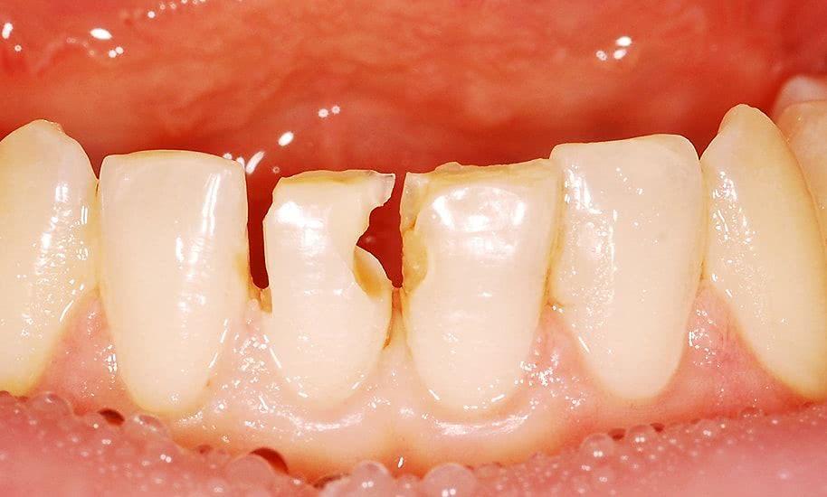 лечение зубов в Минске