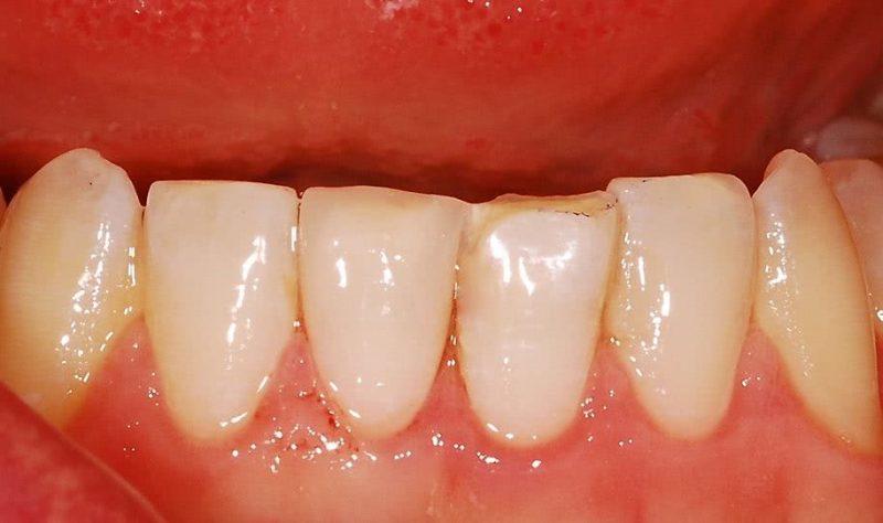 стоимость лечения зубов в Минске