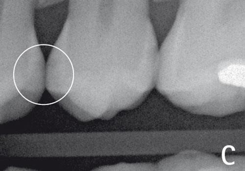 DIAGNOcam - diagnosis of caries without radiation