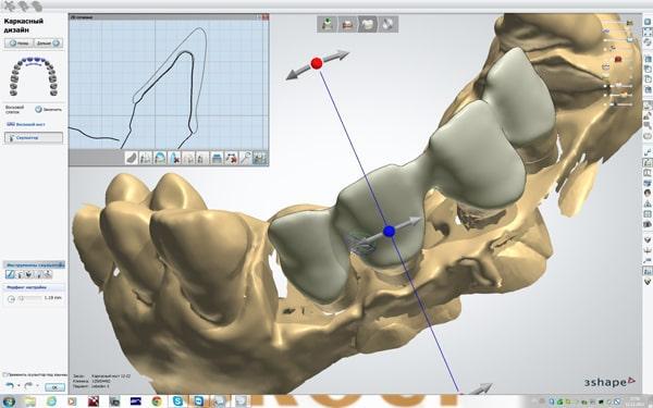 Einsatz von CAD-CAM-Systemen in der Zahnmedizin