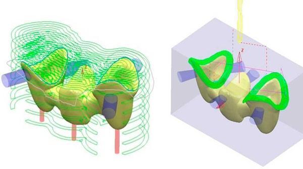 CAD-CAM-Systeme in der Zahnmedizin