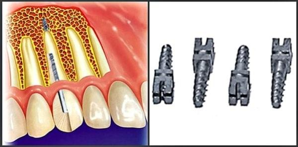 Inexpensive dental implantation