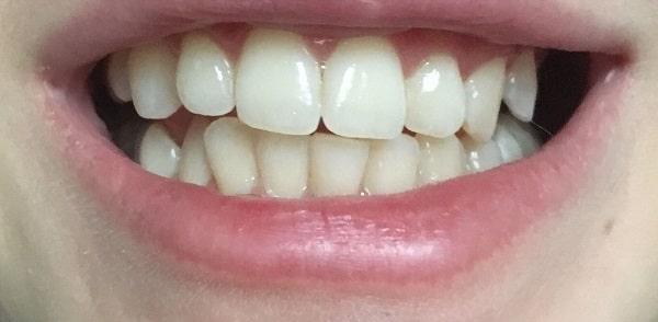 Zdjęcia przed wybielaniem zębów w Mińsku