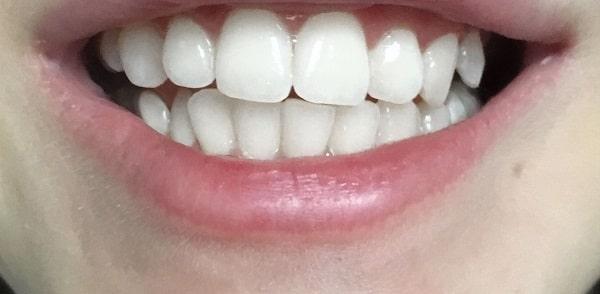 Zdjęcie po wybielaniu zębów