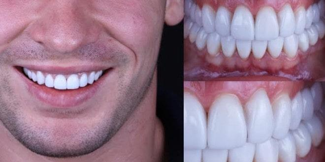 Installation of veneers in Minsk