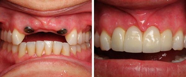 Two-stage implantation of teeth with delayed loading: before and after