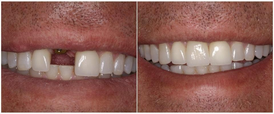 Immediate loading one-stage implantation: Before and after