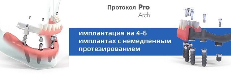 Полное протезирование на 4-6 имплантах Straumann Pro Arch