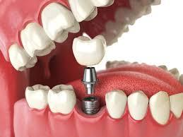 Dental implantation methods