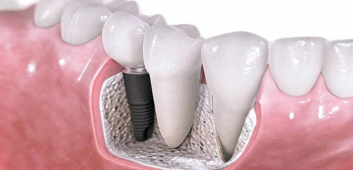 Implantation of chewing teeth