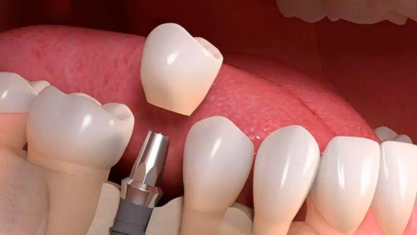 Sofortige Zahnimplantation