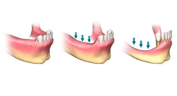 Dental implants at atrophy of bone tissue
