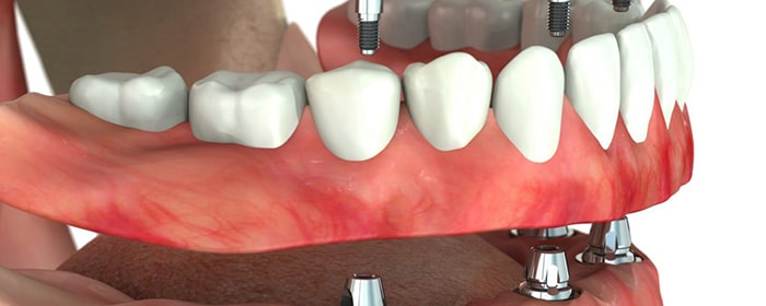 Complete implantation of all teeth