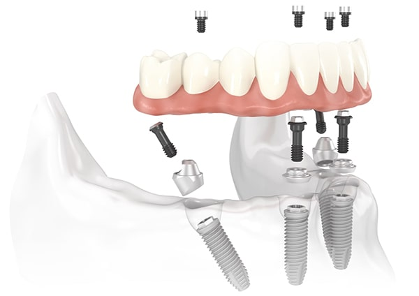 Complete implantation of all teeth in Minsk