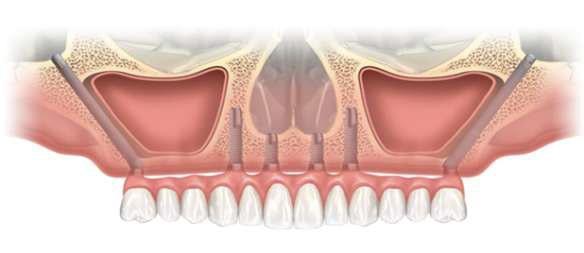 Скуловая имплантация Zygoma на верхнюю челюсть