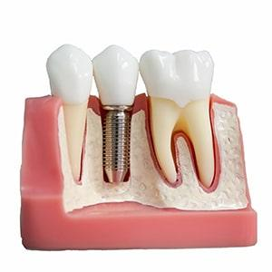 Denture implants cost per tooth