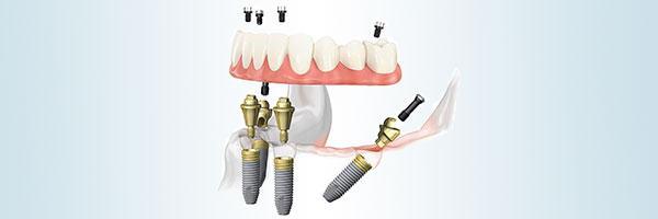 Implantieren Sie All-on-4