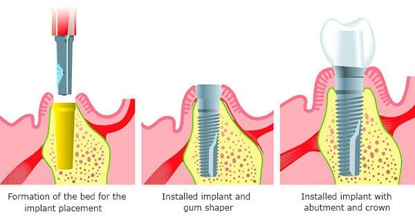 Dental implants at atrophy of bone tissue