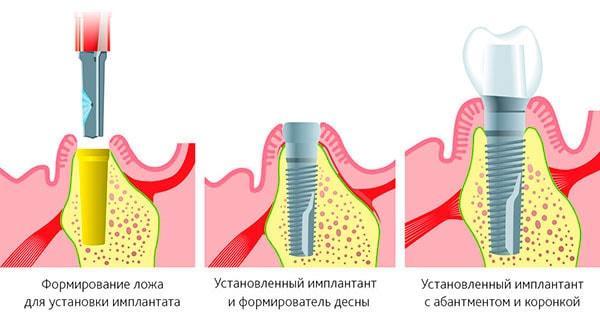 Три этапа имплантации при атрофии: костная пластика, имплантация, установка коронки