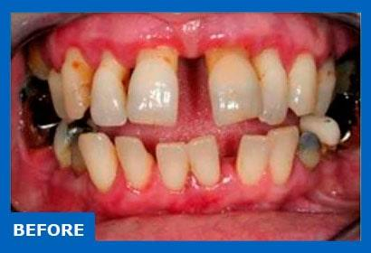 Dental implants for periodontitis. Photo before