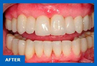 Dental implants for periodontitis. Photo after