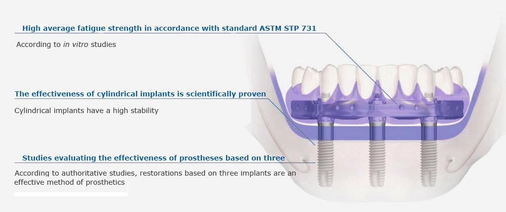 Prosthetics on implants Trefoil