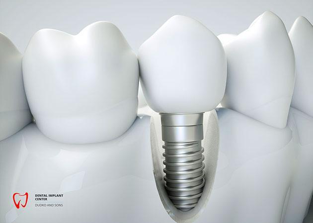 Implantatmaterialien